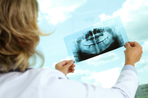 Black Mountain Dental On How X-Rays Can Help Your Smile